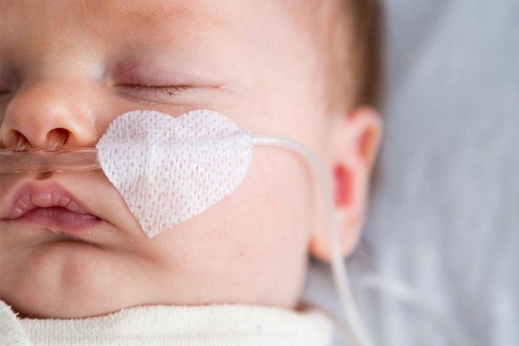 Herzkranke-Kinder-Muenster-baby-herzfehler-schlauch
